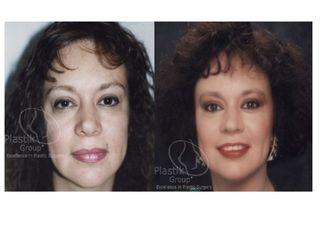 Facelift y eliminar cicatriz de la mandibula