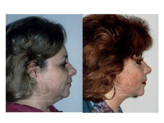 Cirugía de papada-623951