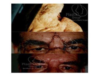 Cirugía plástica reconstructiva-623957
