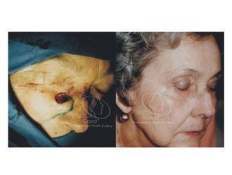 Cirugía plástica reconstructiva-623959