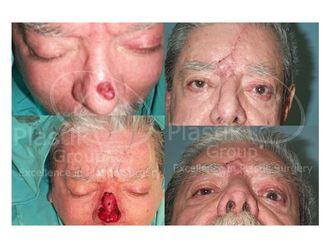 Cirugía plástica reconstructiva-623963