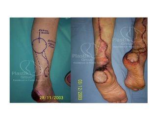 Ulceras de talón