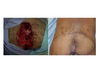 Cirugía plástica reconstructiva-623966