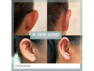 Otoplastia-639427