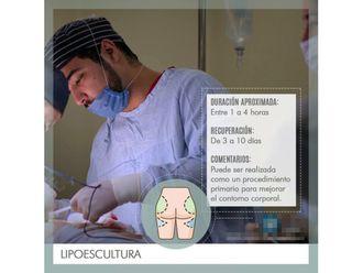 Lipoescultura-639429