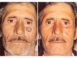 Carcinoma Basocelular-498158