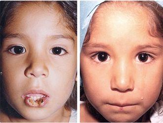 Cirugía plástica reconstructiva-498159