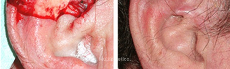 Carcinoma en oreja