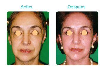 Clínica Dermatológica Y Cirugía Estética De Puebla