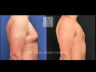 Cirugía ginecomastia - 635877