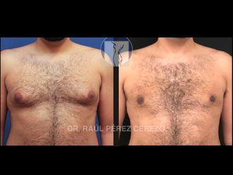 Cirugía ginecomastia - 635878