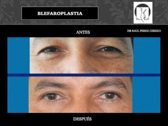 Blefaroplastia - 640144