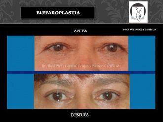 Blefaroplastia - 640150