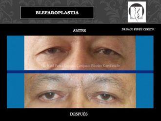 Blefaroplastia - 640151