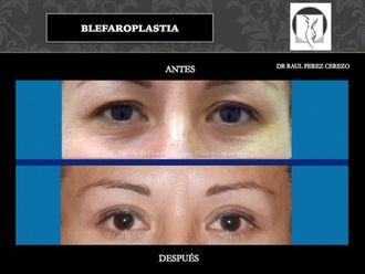 Blefaroplastia - 640152