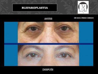 Blefaroplastia - 640153