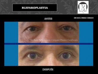 Blefaroplastia - 640154
