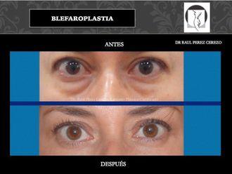 Blefaroplastia - 640155