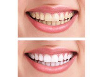Blanqueamiento Dental-499797