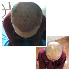 Alopecia - Dra. Anja Arellano