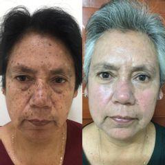 Manchas de la piel - Dra. Anja Arellano