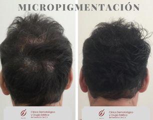 Micropigmentación - Dra. Anja Arellano