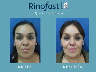 Resultados rinoplastia