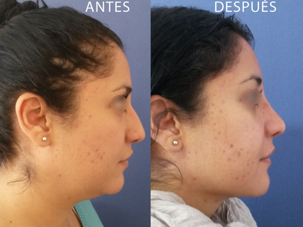 fosas nasales desiguales despues de rinoplastia