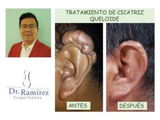 Cirugía para cicatrices - 660817