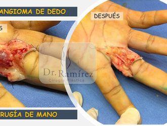 Cirugía plástica reconstructiva-660850