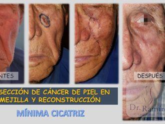 Carcinoma Basocelular-660852