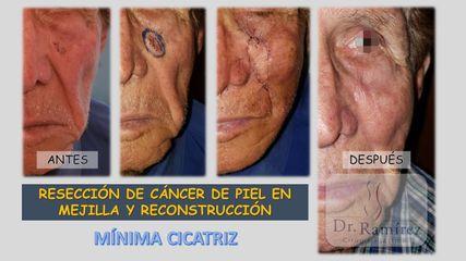 Cancer mejilla
