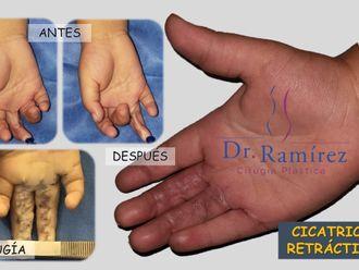 Cirugía para cicatrices - 661230
