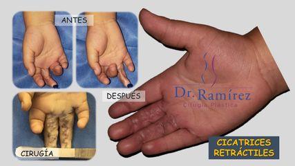 Cicatriz retráctil mano