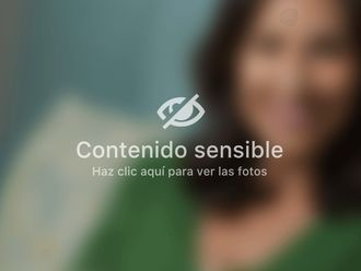 Abdominoplastia-661513