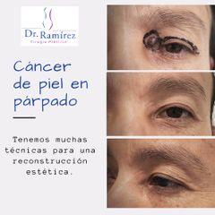 Cancer de piel en parpado - Dr. Edgar Ramírez López