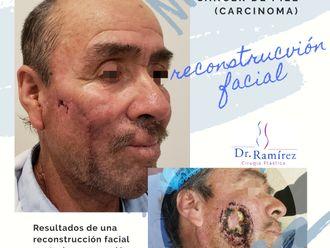 Carcinoma Basocelular-662151