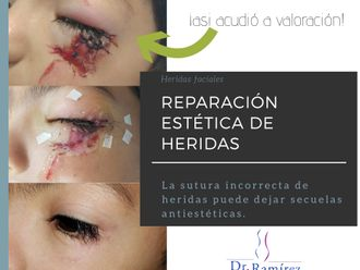 Cirugía para cicatrices - 662152