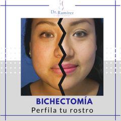 Bichectomia - Dr. Edgar Ramírez López