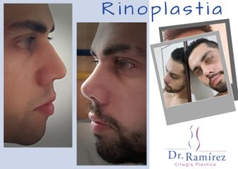 Rinoplastia de Hombre - Dr. Edgar Ramírez López
