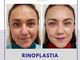 Rinoplastia-663324