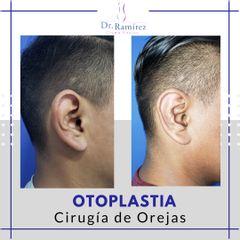 Otoplastia - Dr. Edgar Ramírez López