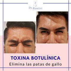 Toxina patas de gallo - Dr. Edgar Ramírez López