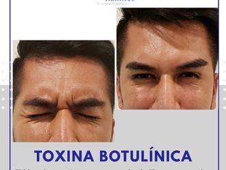 Bótox-663590