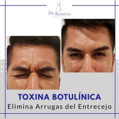 Toxina entrecejo en hombre - Dr. Edgar Ramírez López