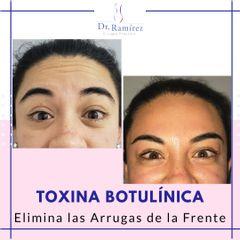 Toxina Frente Mujer - Dr. Edgar Ramírez López