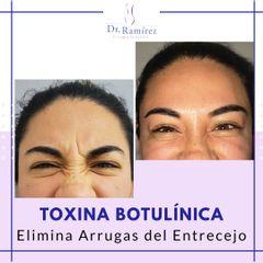 Toxina entrecejo mujer - Dr. Edgar Ramírez López