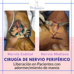 Cirugía de Nervio periférico - Dr. Edgar Ramírez López