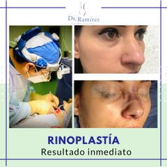 Rinoplastia - Dr. Edgar Ramírez López