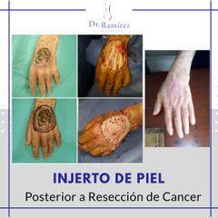 Injerto en dorso de mano - Dr. Edgar Ramírez López